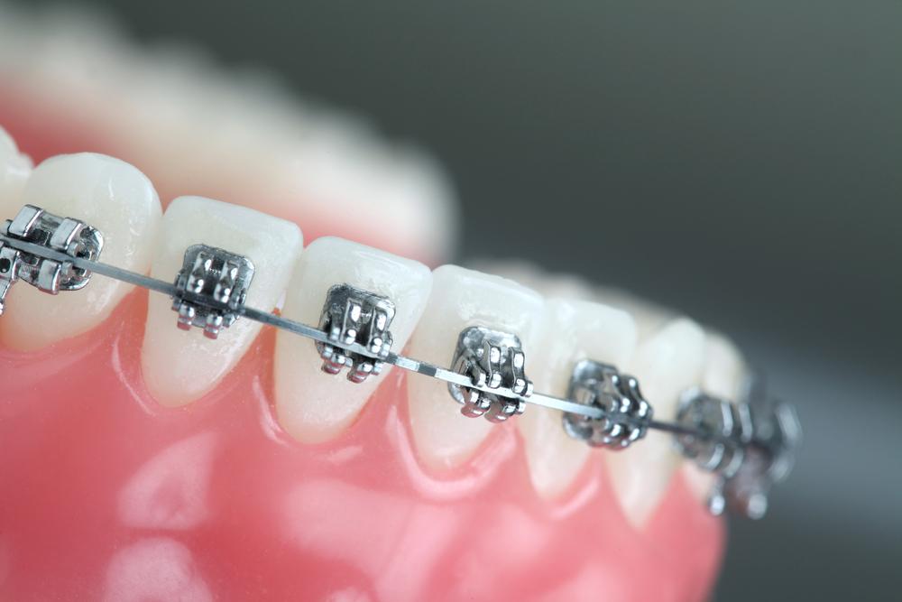 พบกับ 5 ความเสี่ยงกับการจัดฟันแฟชั่น ในคลินิกเถื่อน 2