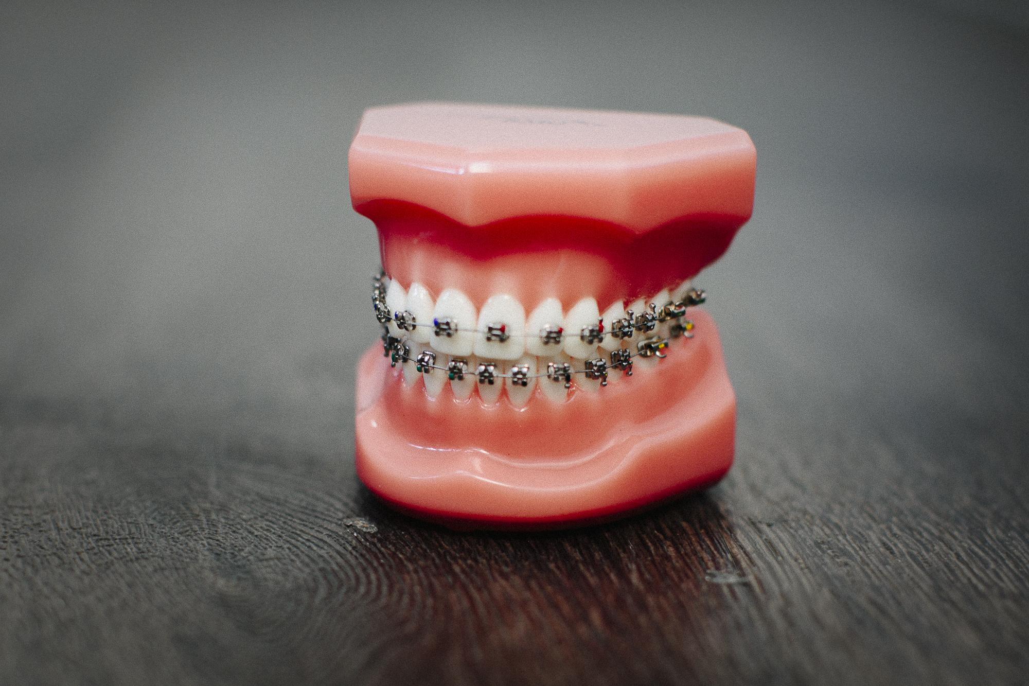 พบกับ 5 ความเสี่ยงกับการจัดฟันแฟชั่น ในคลินิกเถื่อน 3